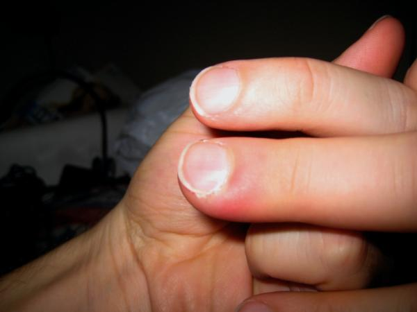 how to know if your finger is infected